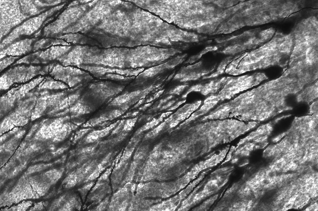 A black and white image via microscope of Golgi stained neurons. The back ground is shades of white and gray, the neurons appears to be black. They resemble tree branches or even a landscape viewed from very far up in the sky.