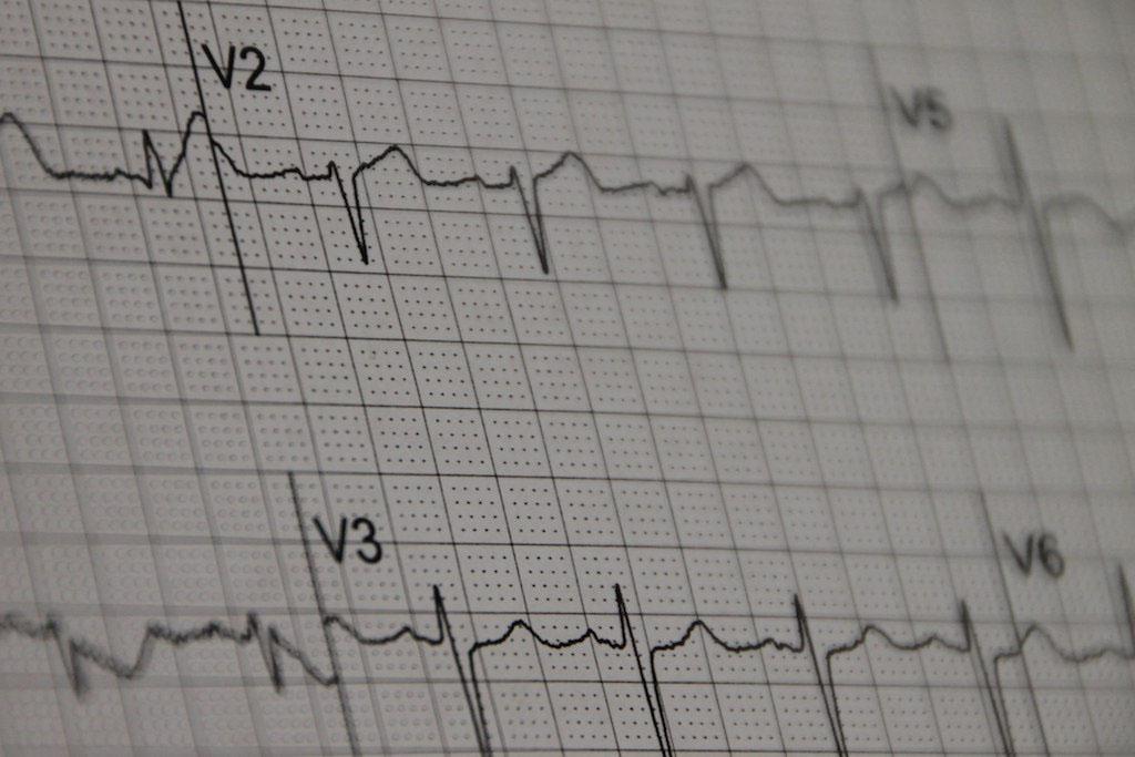 An EKG print out (mgstanton, Flickr).