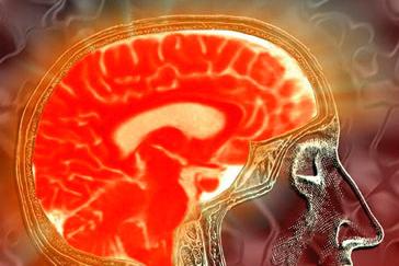 An image of a human brain (Laura Dahl, Flickr)