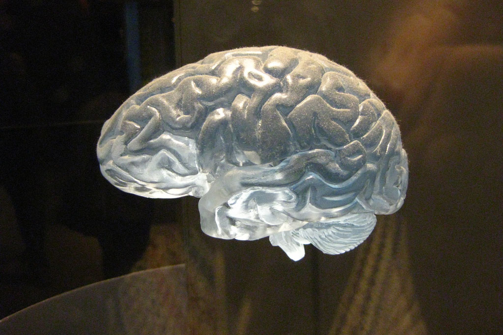 A model of a human brain (Quel Beast! Flickr)