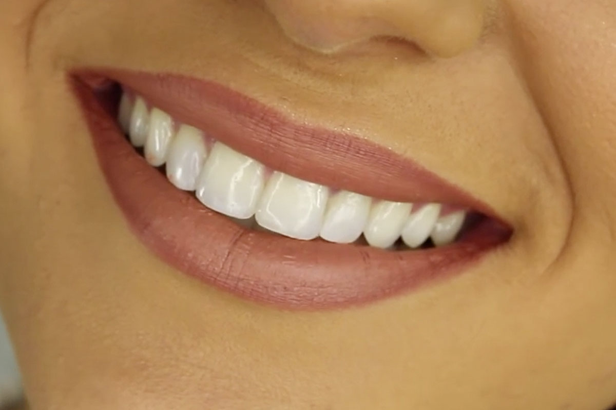 Cuts in the human mouth heals far more quickly than  those on other parts of the body.