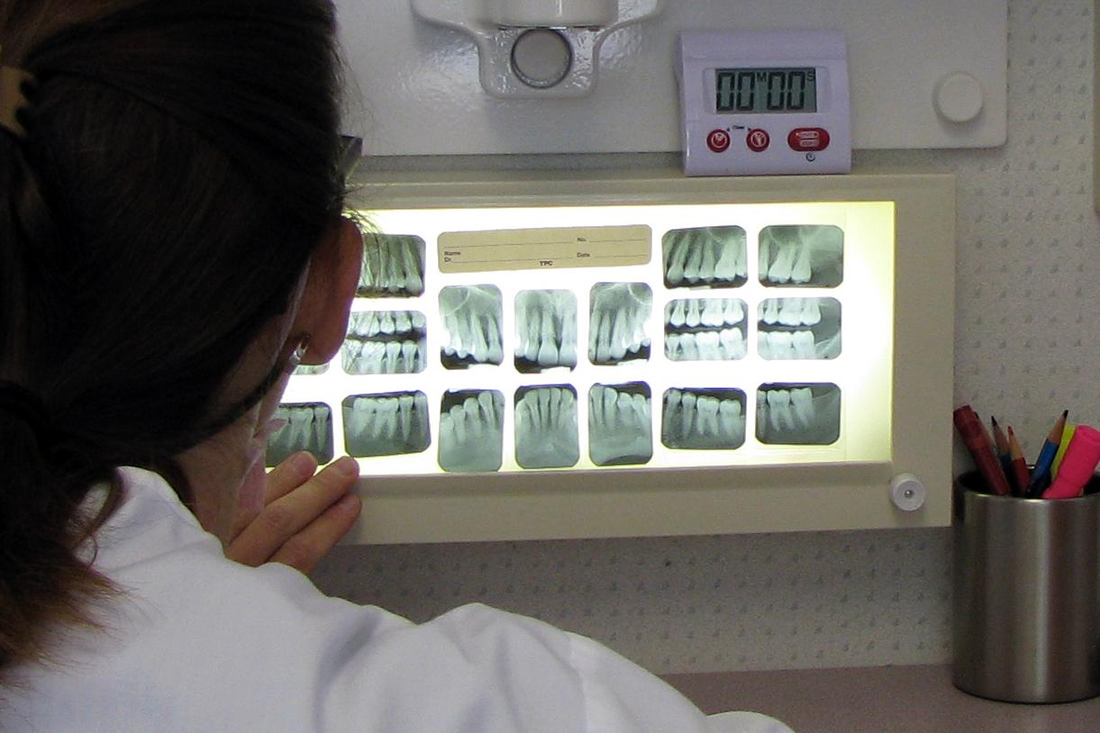 dentist with xrays